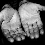 ¡Las manos también se hinchan!