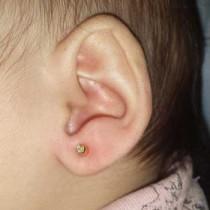 Agujeros en las orejas de un bebé